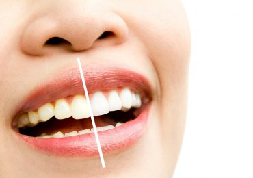 teeth whitening price in KL