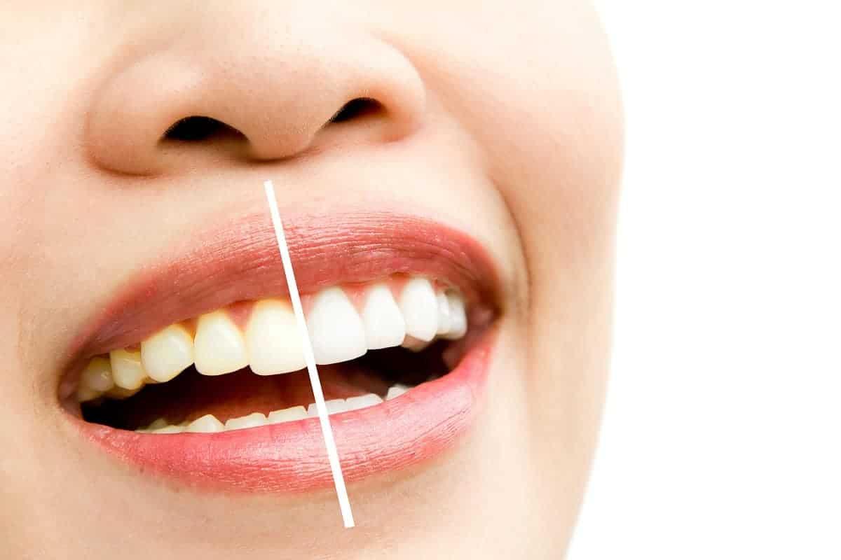 teeth whitening price in KL