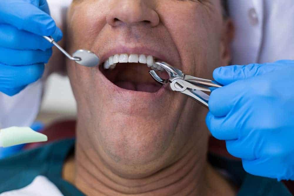 Tooth Extraction in Sri Petaling